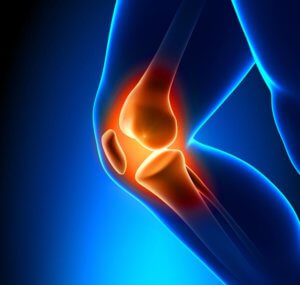 Study Shows Positive Clinical Outcomes: Amniotic Fluid for Osteoarthritis