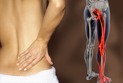 Spinal decompression therapy for back pain